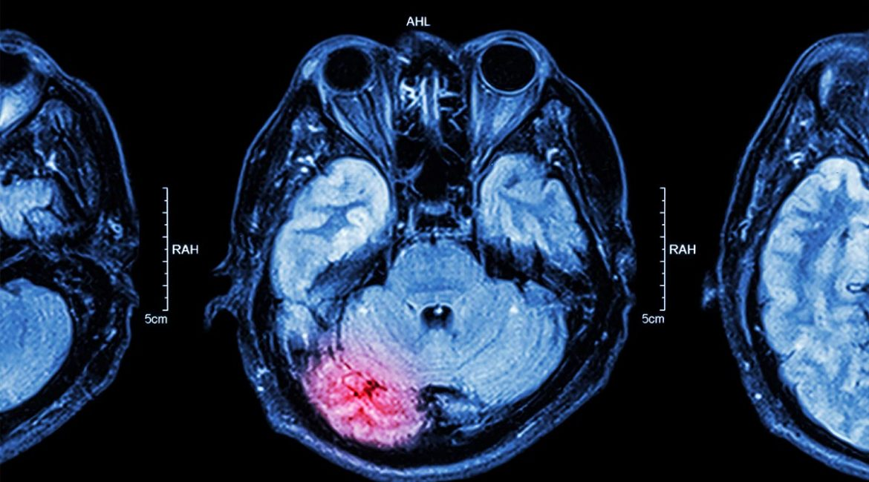 Traumatic Brain Injury After a Car Accident, Personal Injury Lawyers | Sawan & Sawan LLC | 419-900-0955